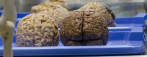 Vers une nouvelle neuroesthétique élargie